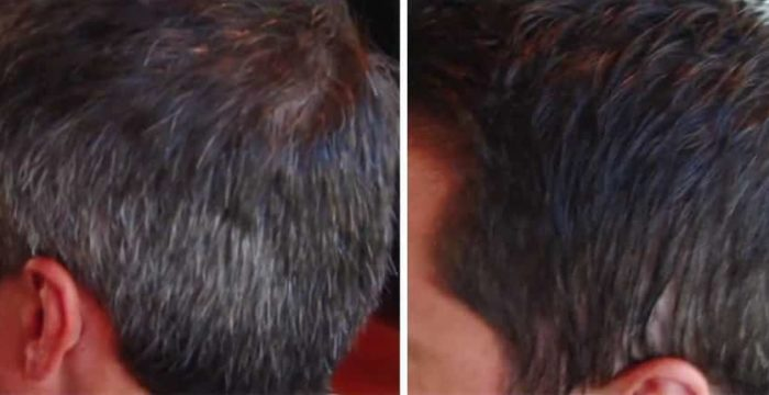 grey-hair-before-after